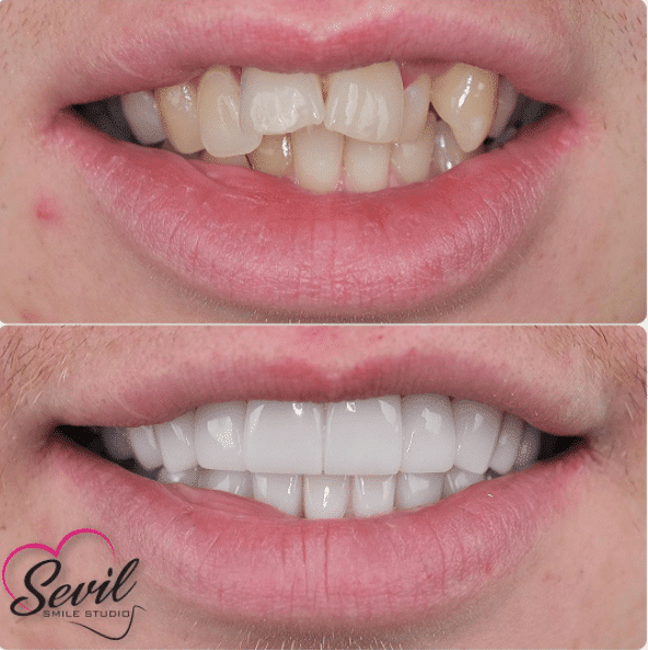 Before after smileclub